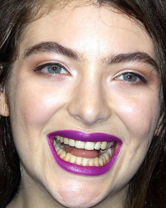 Не голливудская улыбка! 6 звезд с желтыми зубами (фото)