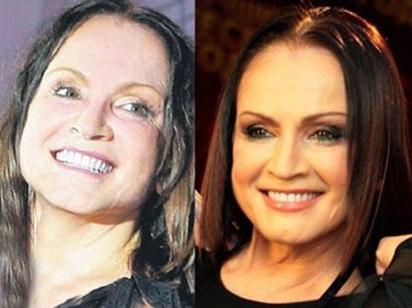 Как выглядят российские звезды за 45 лет без макияжа и фотошопа
