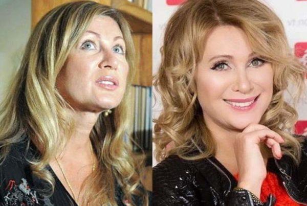 Фото Вики Цыгановой до и после пластики